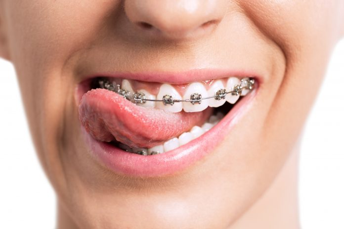 teen smiling with braces