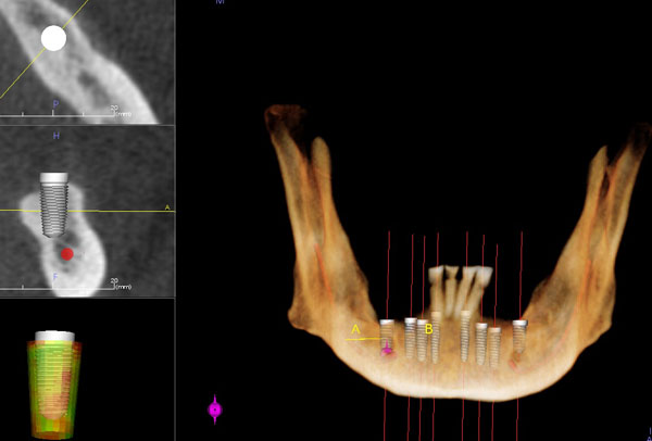 CT Scan For Dental Implants