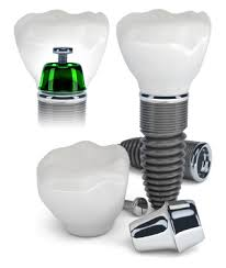 Dental Implant Set