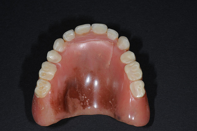 Snap In Dentures Vs Implants How Much Do They Cost