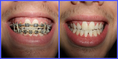 5 honest invisalign before after reviews all new teeth braces before after pictures why you need to see this solutioingenieria Choice Image