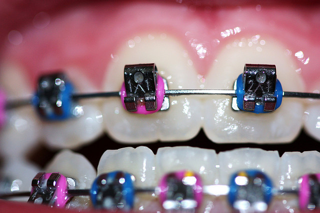closeup of colorful braces