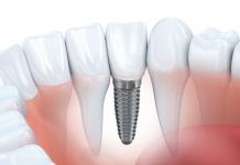 dental-implant-cost