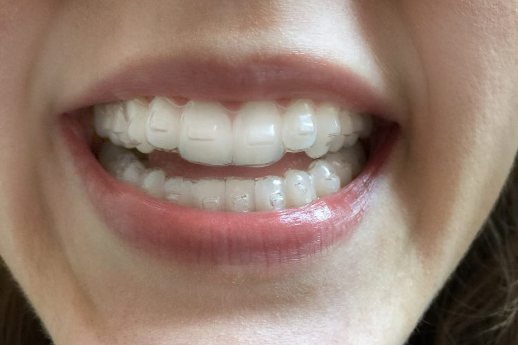 5 honest invisalign before after reviews all new teeth anna monette roberts image via popsugar photography solutioingenieria Choice Image