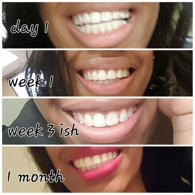 5 honest invisalign before after reviews all new teeth working towards the halfway mark with invisalign image via realself solutioingenieria Choice Image