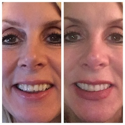 invisalign for adults over 50