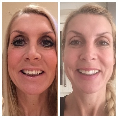 5 Honest Invisalign Before & After Reviews - All New Teeth